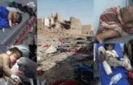 جريمة المساعفة .. إضافة جديدة لسجل التحالف السعودي الأسود