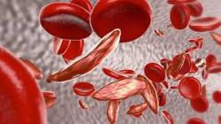 مرضى الثلاسيميا وتكسرات الدم الوراثية موتى على قيد الحياة